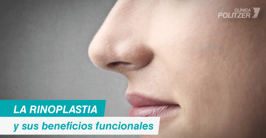 Rinoplastia: beneficios funcionales